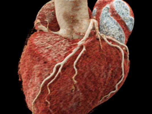 CTA-Hjerte
